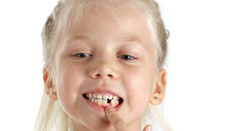 Czy o zęby mleczne należy dbać tak samo jak o zęby stałe, czy ich pielęgnacja się różni?